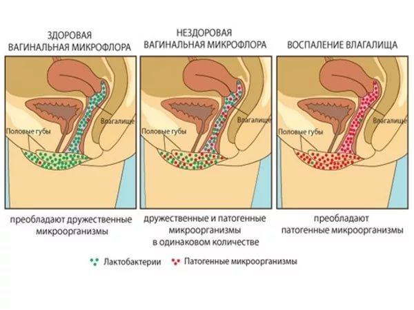 Симптомы и лечение кандидозного кольпита при беременности