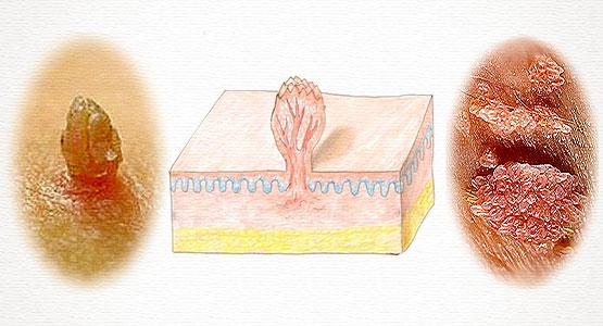 Иллюстрация 1