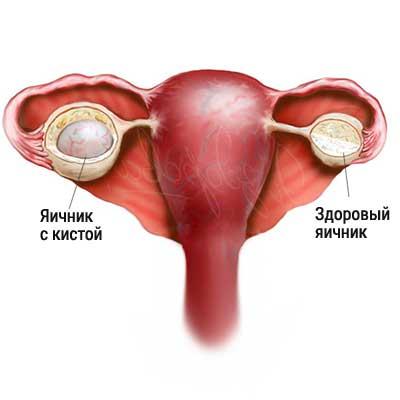 Кистозное изменение яичников, кистозная деградация и мелкокистозные образования в толще