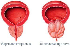 Тянет яички причины 44