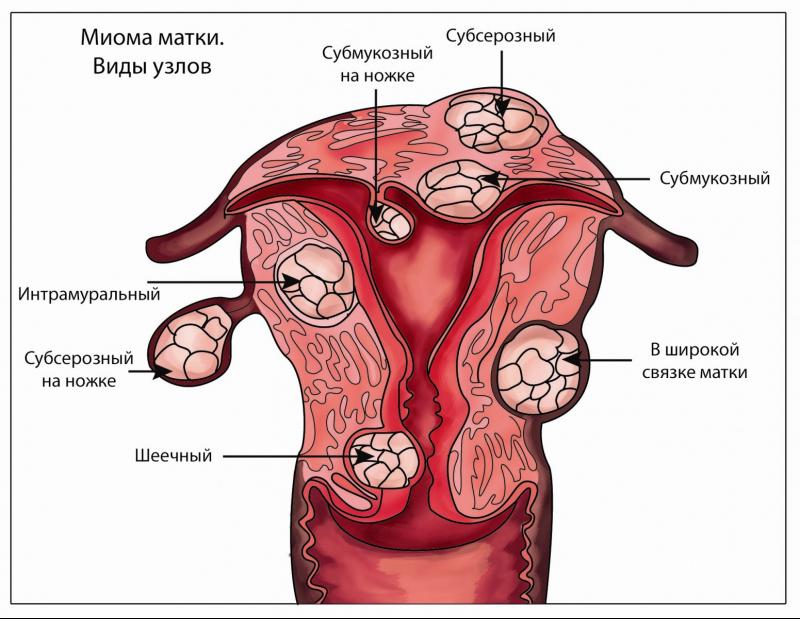 гинекология удаление матки и придатков