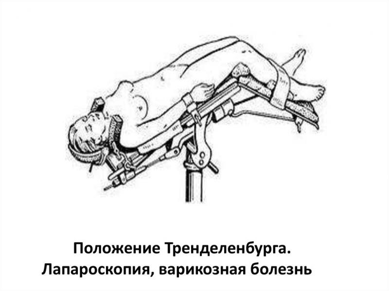 метод лапароскопии в гинекологии